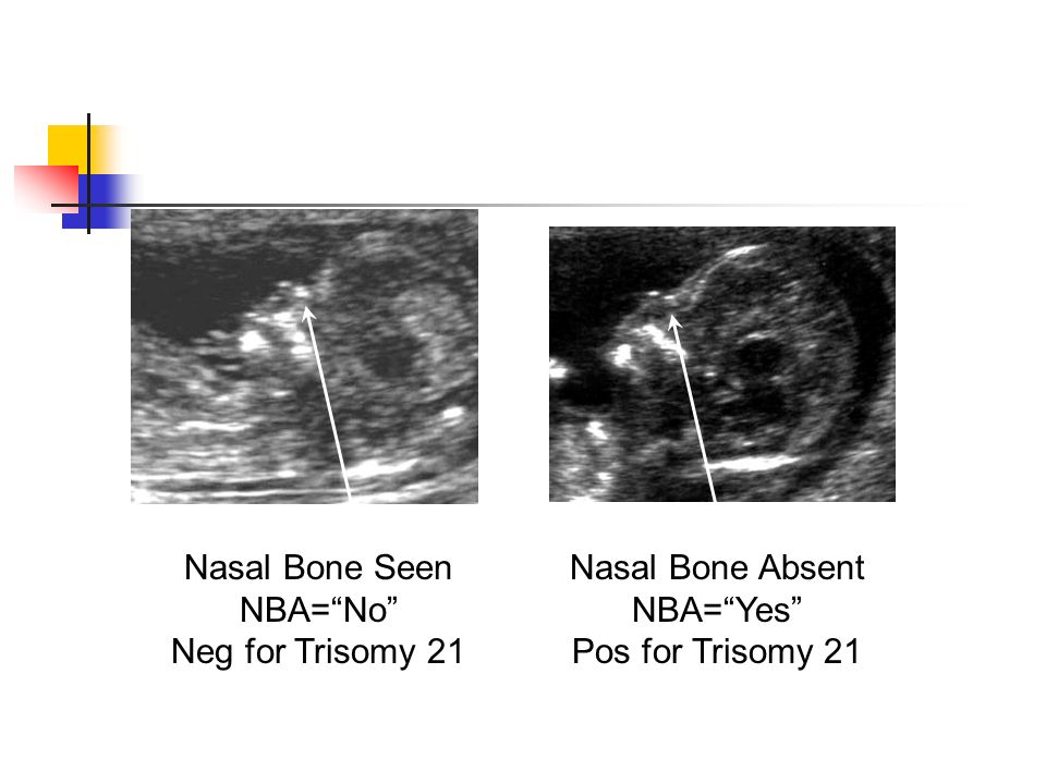 Nasal Bone Seen NBA=No Neg for Trisomy 21 Nasal Bone Absent NBA=Yes Pos for Trisomy 21
