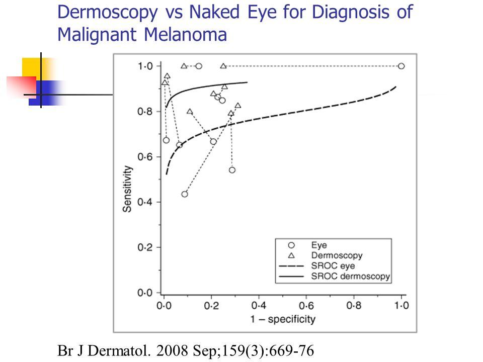 Dermoscopy vs Naked Eye for Diagnosis of Malignant Melanoma Br J Dermatol. 2008 Sep;159(3):669-76