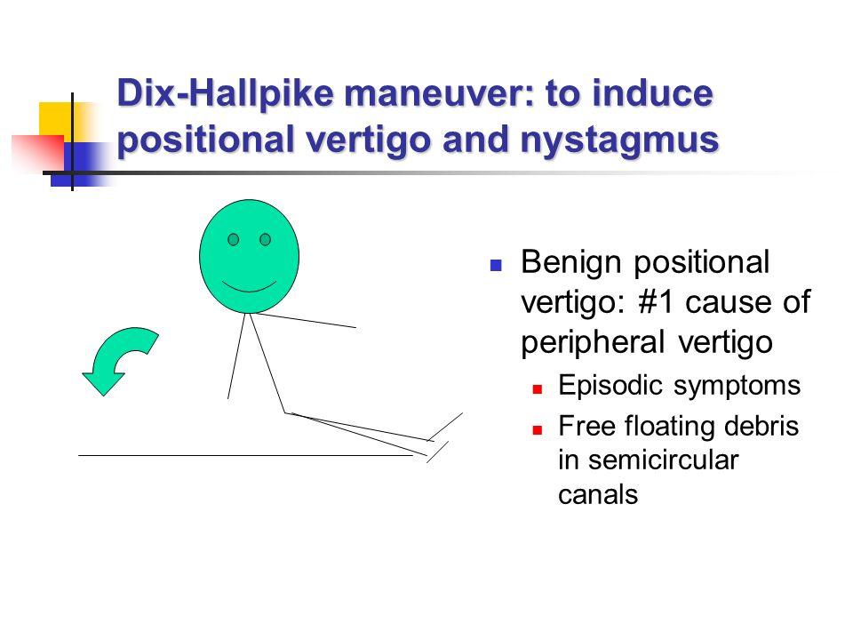 Dix-Hallpike maneuver: to induce positional vertigo and nystagmus Benign positional vertigo: #1 cause of peripheral vertigo Episodic symptoms Free floating debris in semicircular canals