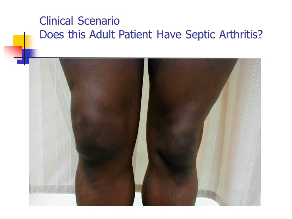 Clinical Scenario Does this Adult Patient Have Septic Arthritis