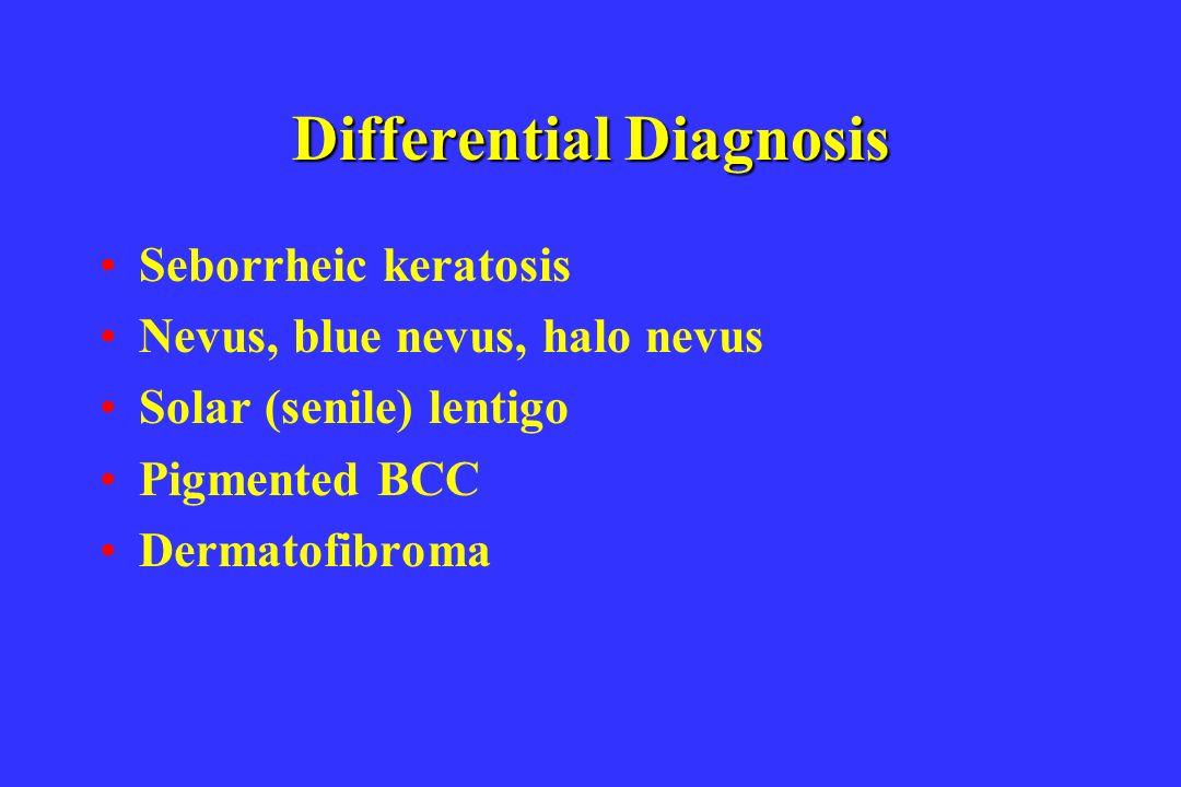 Differential Diagnosis Seborrheic keratosis Nevus, blue nevus, halo nevus Solar (senile) lentigo Pigmented BCC Dermatofibroma