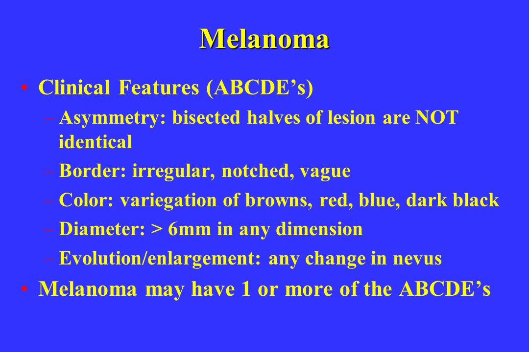 Melanoma Clinical Features (ABCDEs) –Asymmetry: bisected halves of lesion are NOT identical –Border: irregular, notched, vague –Color: variegation of