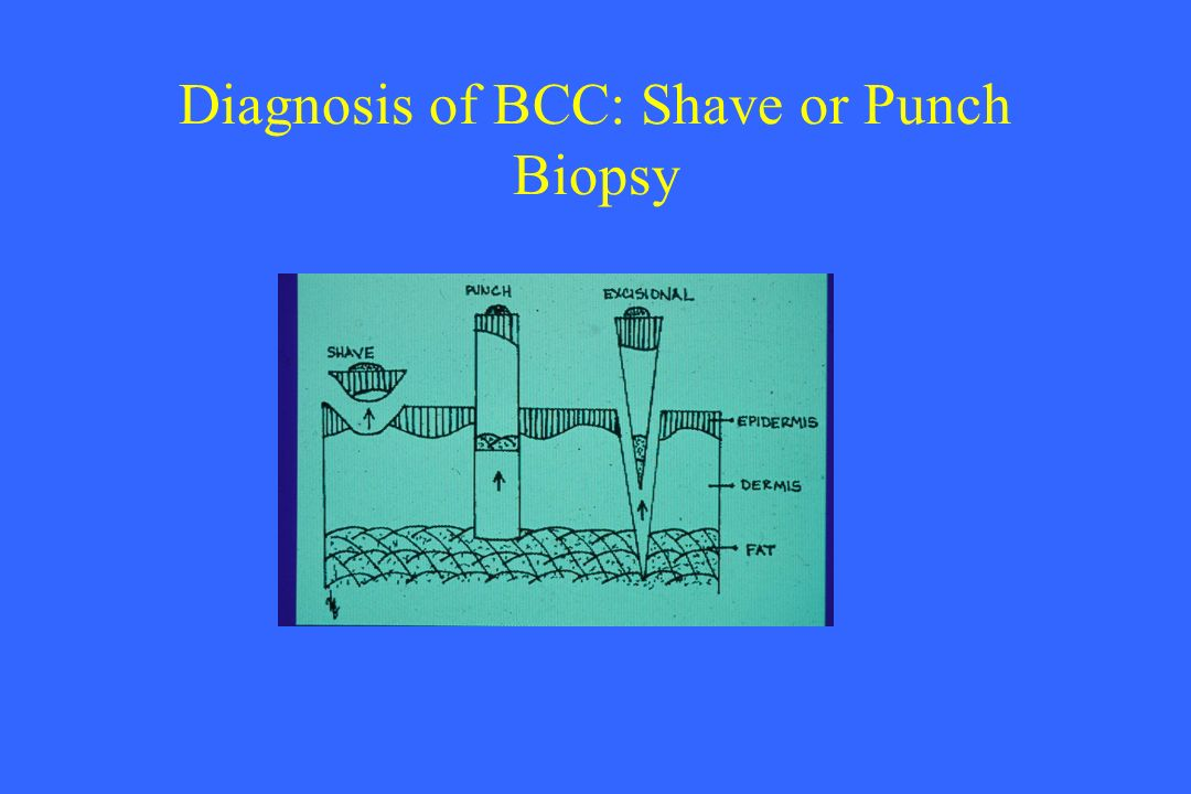 Diagnosis of BCC: Shave or Punch Biopsy