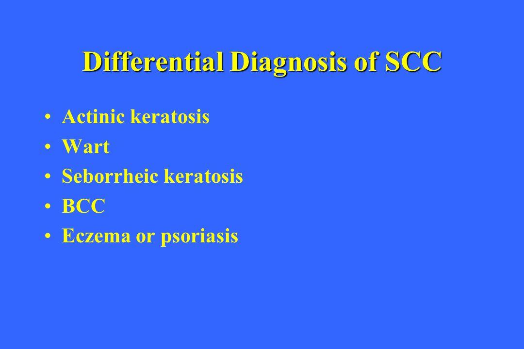 Differential Diagnosis of SCC Actinic keratosis Wart Seborrheic keratosis BCC Eczema or psoriasis