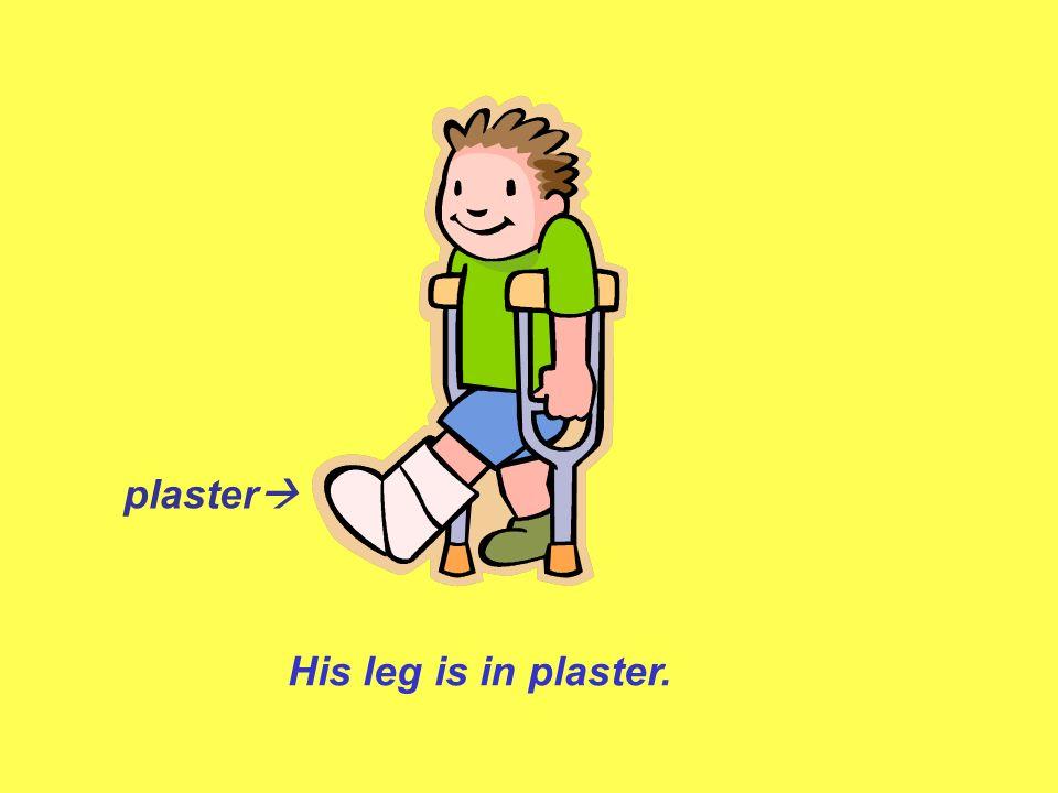 plaster His leg is in plaster.