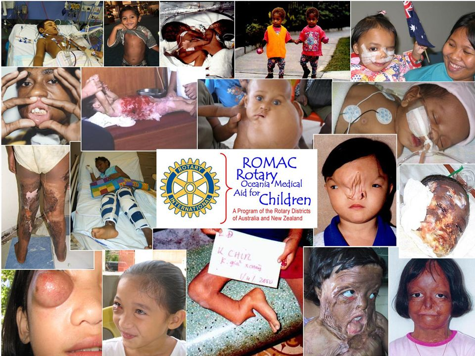 } To provide hope when there is no hope } To restore dignity to human life } To transform a childs life } To provide the best medical and surgical expertise } Welcome to ROMAC { There are children in our world who are forgotten.