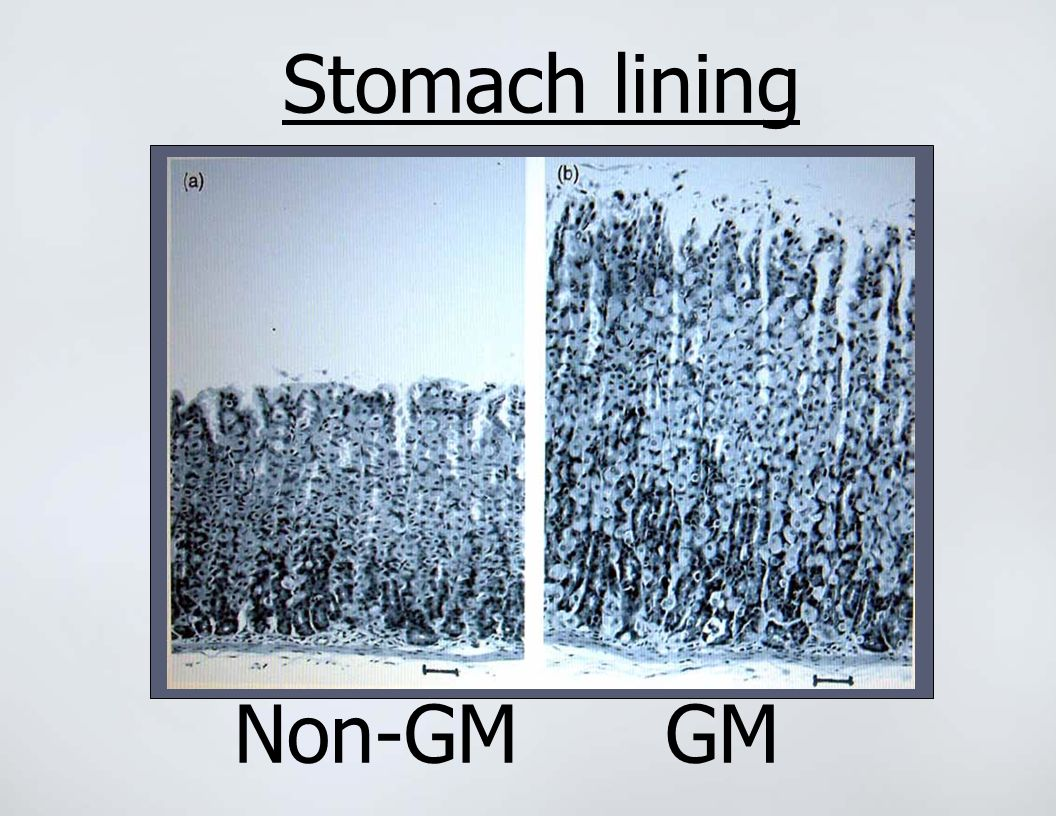 Stomach lining Non-GMGM