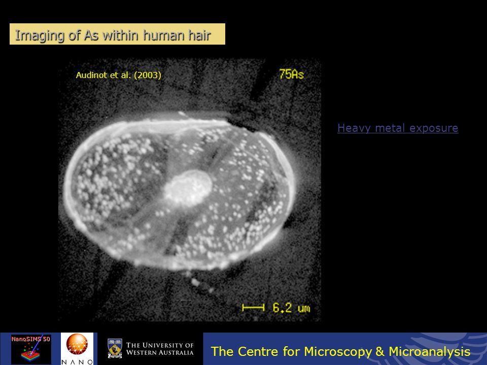 The Centre for Microscopy & Microanalysis NanoSIMS 50 Mouse cochlea cells