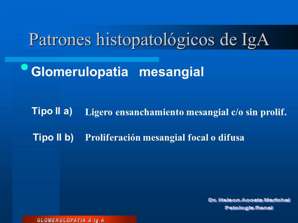 Patrones histopatológicos Tipo VI Esclerosis glomerular avanzada