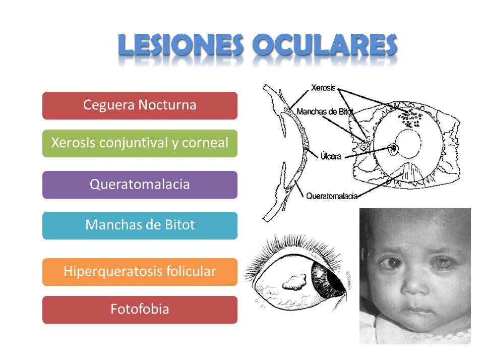 Ceguera NocturnaXerosis conjuntival y cornealQueratomalaciaManchas de BitotHiperqueratosis folicularFotofobia