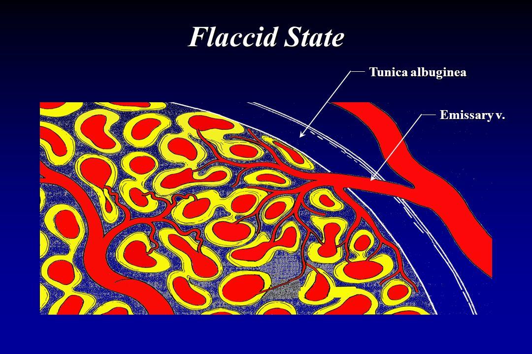 Flaccid State Emissary v. Tunica albuginea