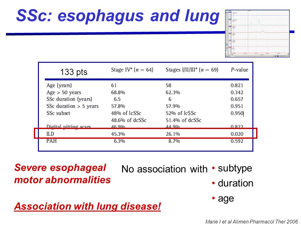 Marie I et al Alimen Pharmacol Ther 2006 Severe esophageal motor abnormalities 133 pts subtype duration age Association with lung disease! No associat