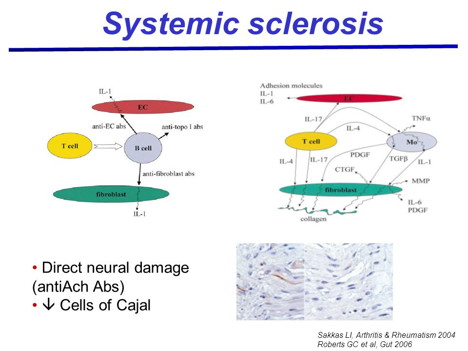 Sakkas LI, Arthritis & Rheumatism 2004 Roberts GC et al, Gut 2006 Systemic sclerosis Direct neural damage (antiAch Abs) Cells of Cajal