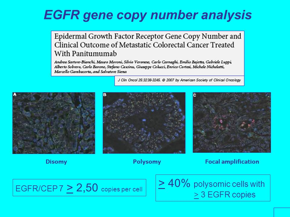 EGFR gene copy number analysis EGFR/CEP 7 > 2,50 copies per cell Disomy PolysomyFocal amplification > 40% polysomic cells with > 3 EGFR copies