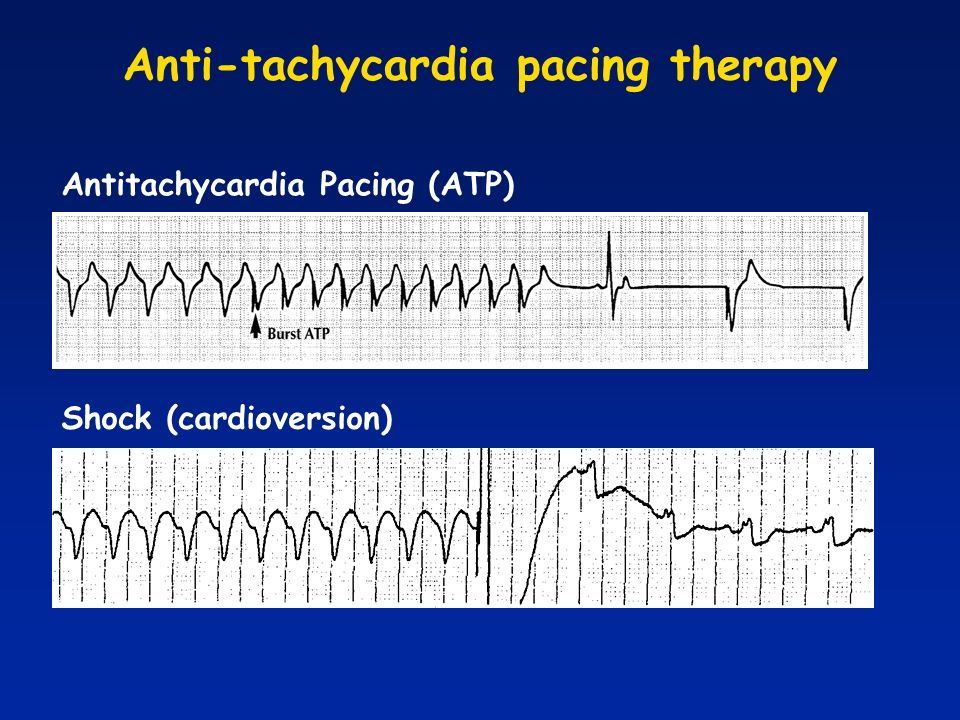 Anti-tachycardia pacing therapy Antitachycardia Pacing (ATP) Shock (cardioversion)