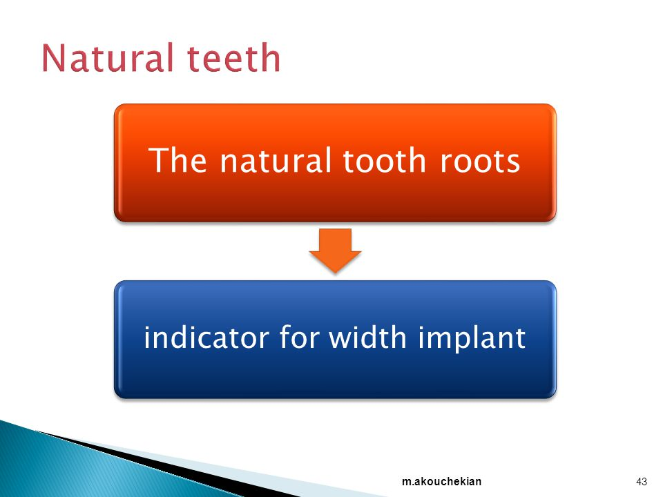m.akouchekian 43 The natural tooth roots indicator for width implant