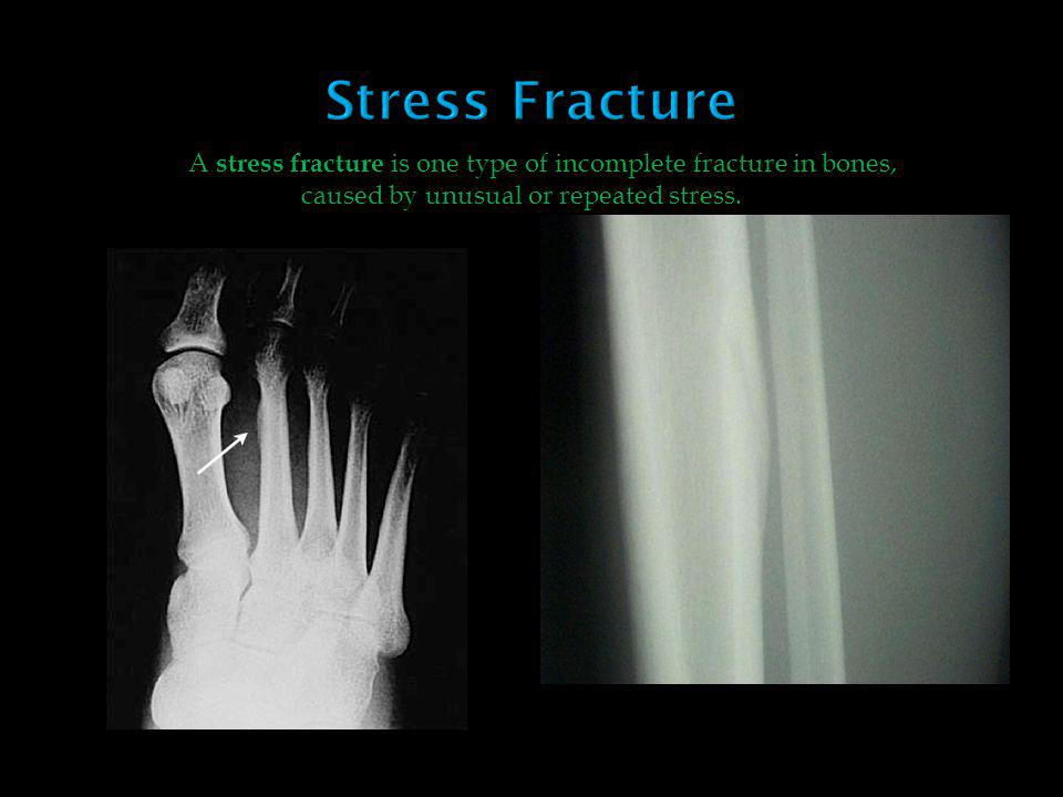 A stress fracture is one type of incomplete fracture in bones, caused by unusual or repeated stress.