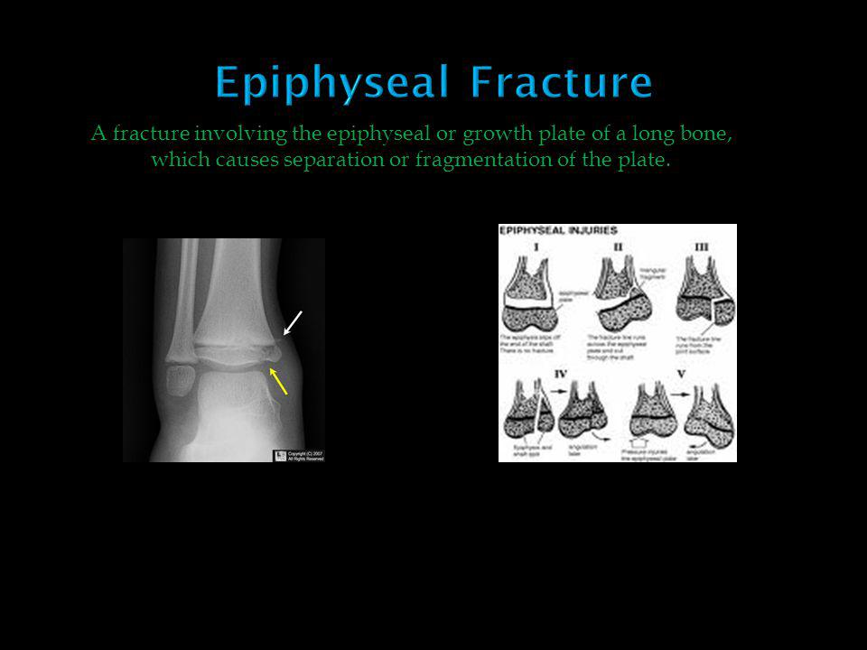 A fracture involving the epiphyseal or growth plate of a long bone, which causes separation or fragmentation of the plate.