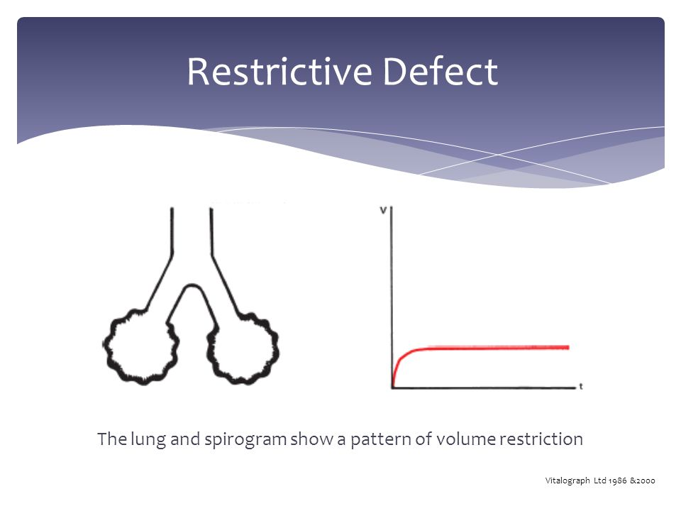 Restrictive Defect The lung and spirogram show a pattern of volume restriction Vitalograph Ltd 1986 &2000