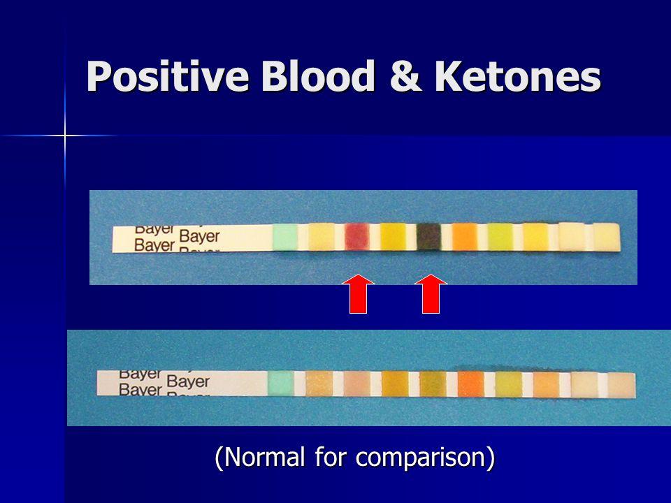 Positive Blood & Ketones (Normal for comparison)