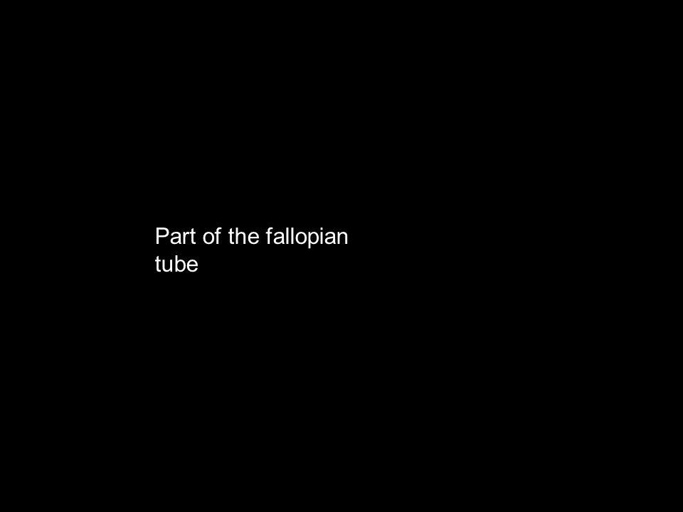 Part of the fallopian tube
