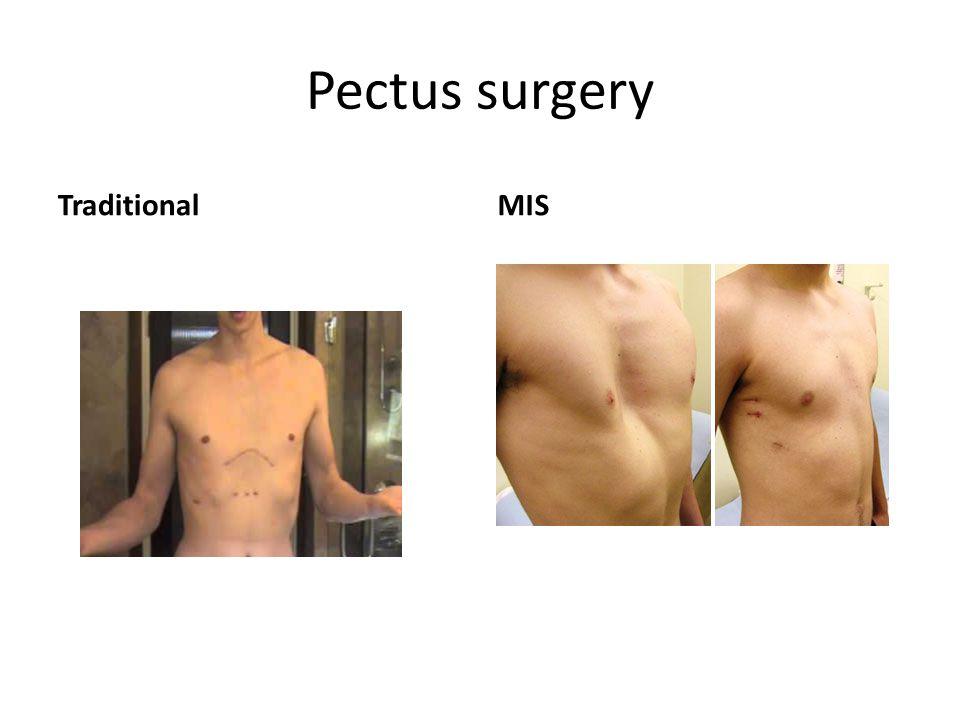 Pectus surgery TraditionalMIS