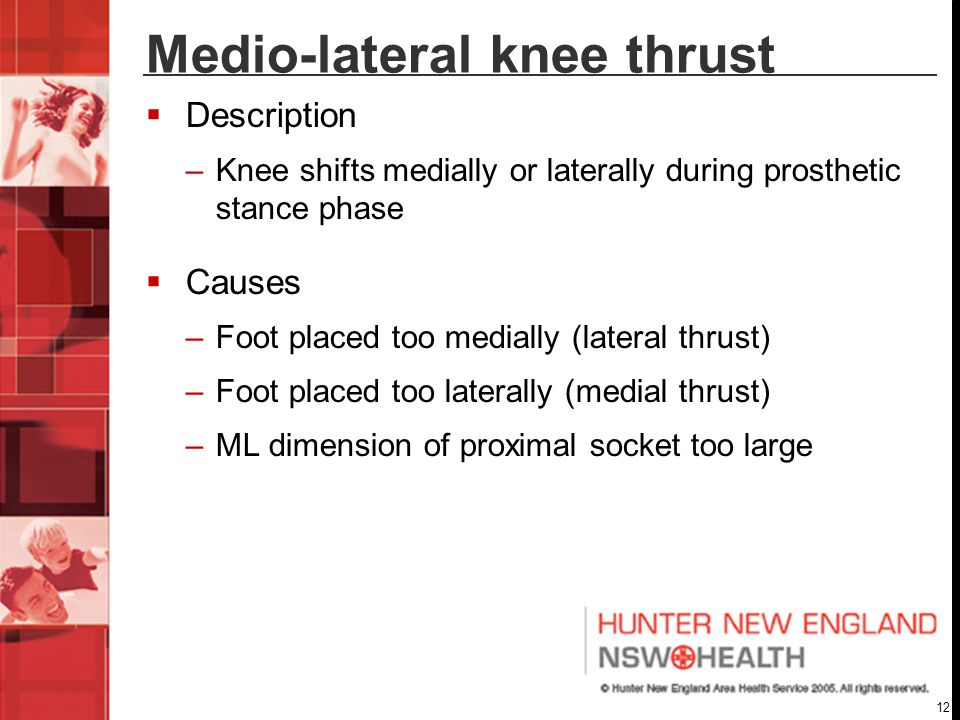 12 Medio-lateral knee thrust  Description –Knee shifts medially or laterally during prosthetic stance phase  Causes –Foot placed too medially (lateral thrust) –Foot placed too laterally (medial thrust) –ML dimension of proximal socket too large