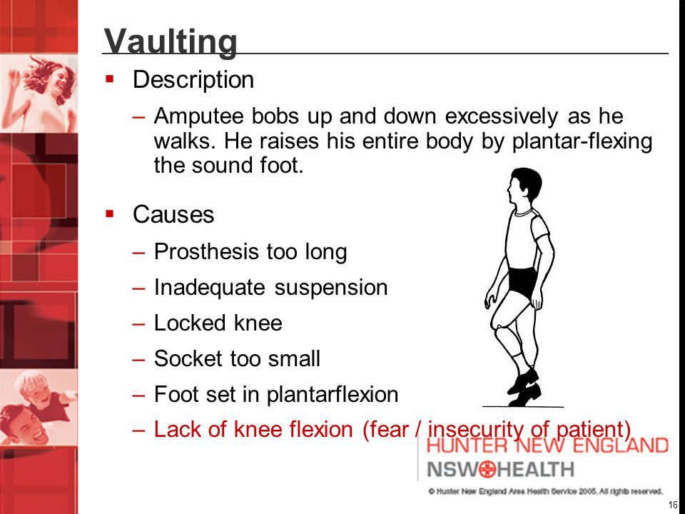 16 Vaulting  Description –Amputee bobs up and down excessively as he walks.