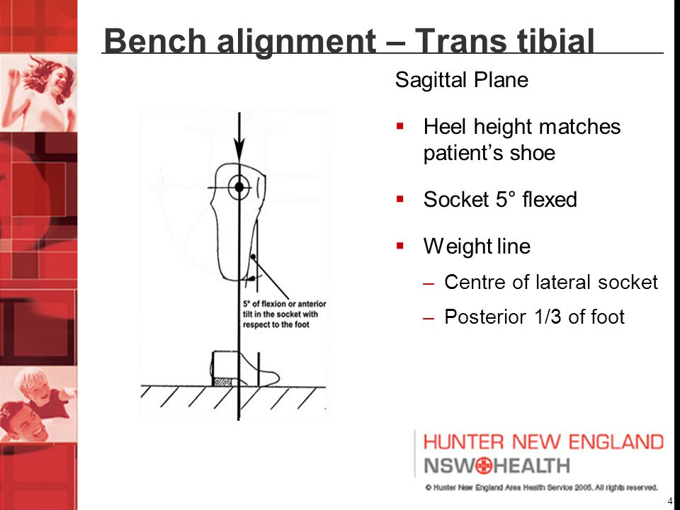 4 Bench alignment – Trans tibial Sagittal Plane  Heel height matches patient's shoe  Socket 5° flexed  Weight line –Centre of lateral socket –Posterior 1/3 of foot