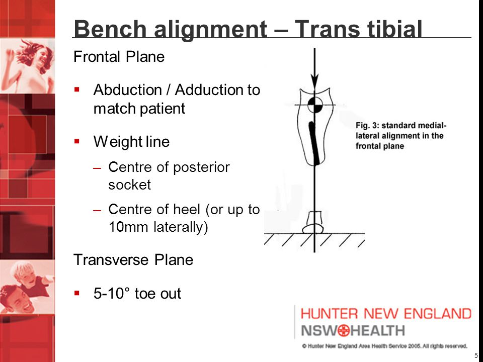 5 Bench alignment – Trans tibial Frontal Plane  Abduction / Adduction to match patient  Weight line –Centre of posterior socket –Centre of heel (or up to 10mm laterally) Transverse Plane  5-10° toe out