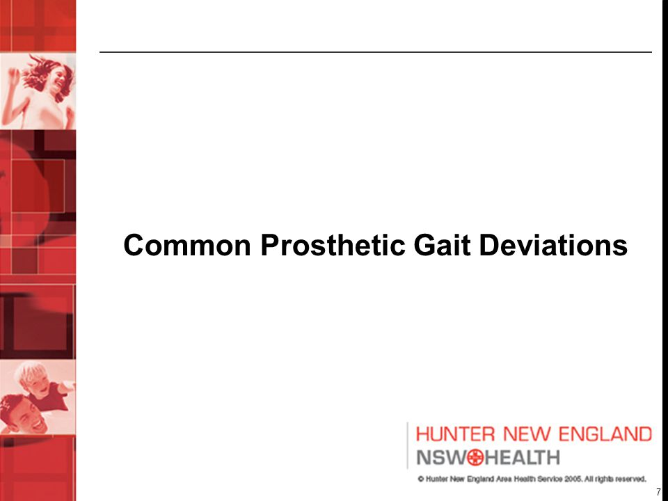 7 Common Prosthetic Gait Deviations