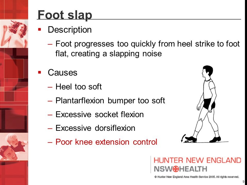9 Foot slap  Description –Foot progresses too quickly from heel strike to foot flat, creating a slapping noise  Causes –Heel too soft –Plantarflexion bumper too soft –Excessive socket flexion –Excessive dorsiflexion –Poor knee extension control