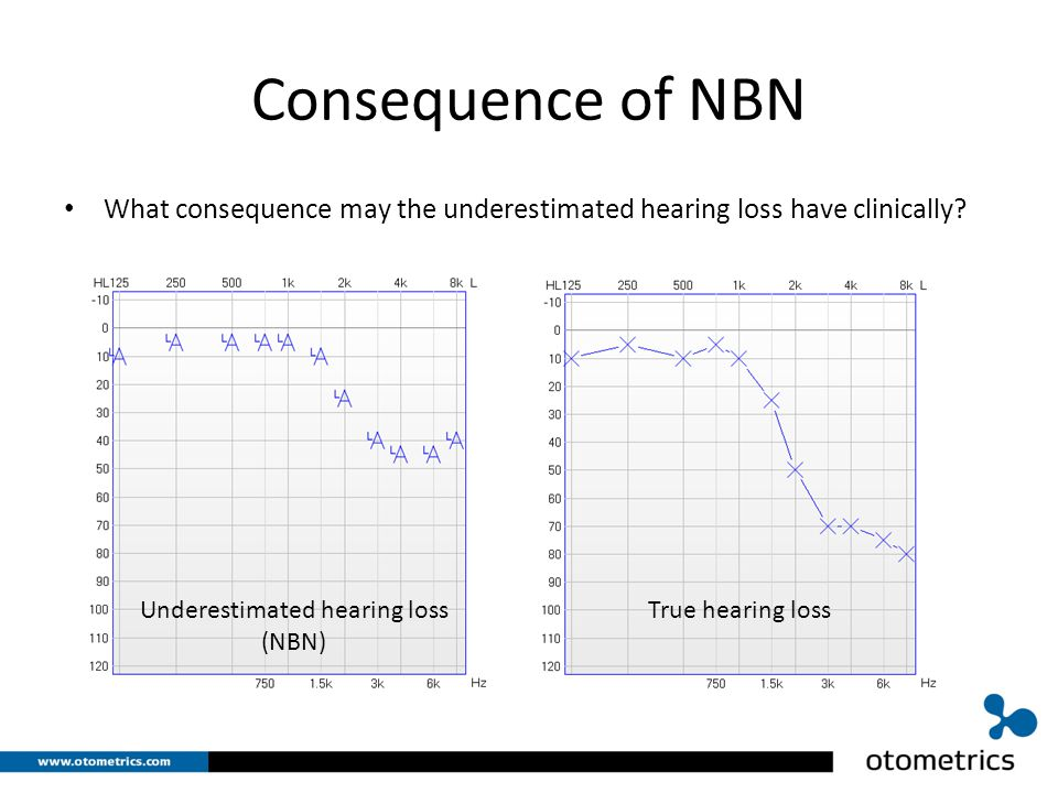 Consequence of NBN What consequence may the underestimated hearing loss have clinically.