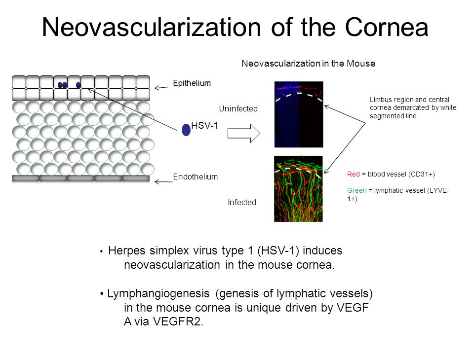 Neovascularization of the Cornea Herpes simplex virus type 1 (HSV-1) induces neovascularization in the mouse cornea.