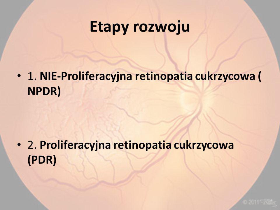 Etapy rozwoju 1.NIE-Proliferacyjna retinopatia cukrzycowa ( NPDR) 2.