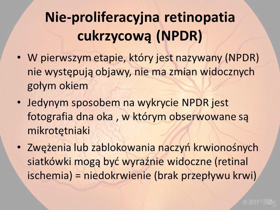 Nie-proliferacyjna retinopatia cukrzycową (NPDR) W pierwszym etapie, który jest nazywany (NPDR) nie występują objawy, nie ma zmian widocznych gołym okiem Jedynym sposobem na wykrycie NPDR jest fotografia dna oka, w którym obserwowane są mikrotętniaki Zwężenia lub zablokowania naczyń krwionośnych siatkówki mogą być wyraźnie widoczne (retinal ischemia) = niedokrwienie (brak przepływu krwi)