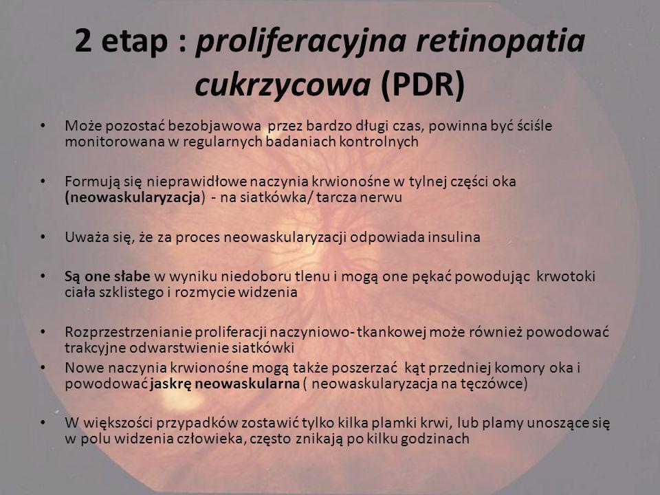 2 etap : proliferacyjna retinopatia cukrzycowa (PDR) Może pozostać bezobjawowa przez bardzo długi czas, powinna być ściśle monitorowana w regularnych badaniach kontrolnych Formują się nieprawidłowe naczynia krwionośne w tylnej części oka (neowaskularyzacja) - na siatkówka/ tarcza nerwu Uważa się, że za proces neowaskularyzacji odpowiada insulina Są one słabe w wyniku niedoboru tlenu i mogą one pękać powodując krwotoki ciała szklistego i rozmycie widzenia Rozprzestrzenianie proliferacji naczyniowo- tkankowej może również powodować trakcyjne odwarstwienie siatkówki Nowe naczynia krwionośne mogą także poszerzać kąt przedniej komory oka i powodować jaskrę neowaskularna ( neowaskularyzacja na tęczówce) W większości przypadków zostawić tylko kilka plamki krwi, lub plamy unoszące się w polu widzenia człowieka, często znikają po kilku godzinach