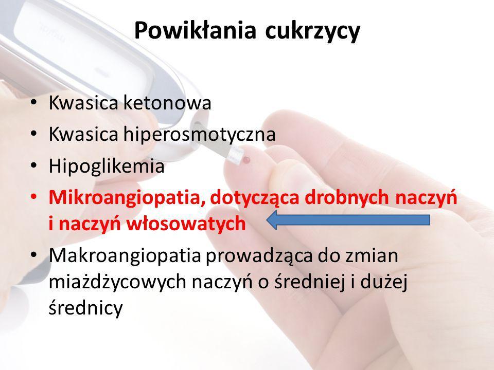 Powikłania cukrzycy Kwasica ketonowa Kwasica hiperosmotyczna Hipoglikemia Mikroangiopatia, dotycząca drobnych naczyń i naczyń włosowatych Makroangiopatia prowadząca do zmian miażdżycowych naczyń o średniej i dużej średnicy