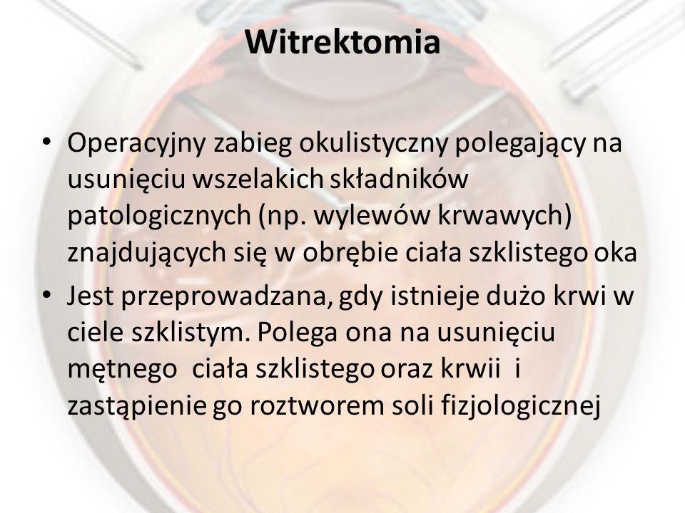 Witrektomia Operacyjny zabieg okulistyczny polegający na usunięciu wszelakich składników patologicznych (np.