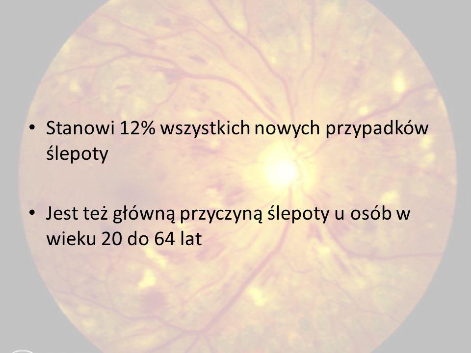 Stanowi 12% wszystkich nowych przypadków ślepoty Jest też główną przyczyną ślepoty u osób w wieku 20 do 64 lat