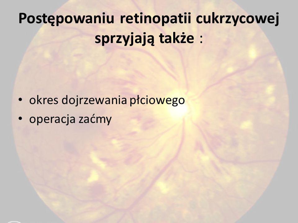 Postępowaniu retinopatii cukrzycowej sprzyjają także : okres dojrzewania płciowego operacja zaćmy