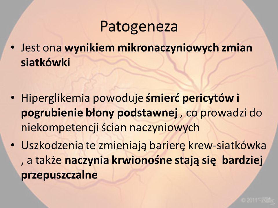 Patogeneza Jest ona wynikiem mikronaczyniowych zmian siatkówki Hiperglikemia powoduje śmierć pericytów i pogrubienie błony podstawnej, co prowadzi do niekompetencji ścian naczyniowych Uszkodzenia te zmieniają barierę krew-siatkówka, a także naczynia krwionośne stają się bardziej przepuszczalne