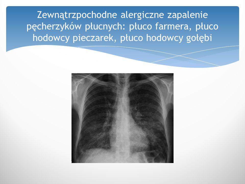 Zewnątrzpochodne alergiczne zapalenie pęcherzyków płucnych: płuco farmera, płuco hodowcy pieczarek, płuco hodowcy gołębi