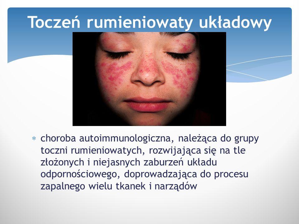  choroba autoimmunologiczna, należąca do grupy toczni rumieniowatych, rozwijająca się na tle złożonych i niejasnych zaburzeń układu odpornościowego,