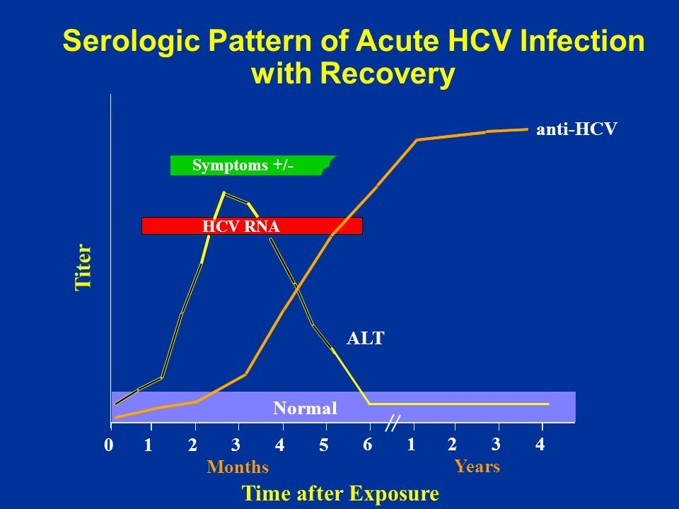Serologic Pattern of Acute HCV Infection with Recovery Symptoms +/- Time after Exposure Titer anti-HCV ALT Normal 012345 61234 Years Months HCV RNA