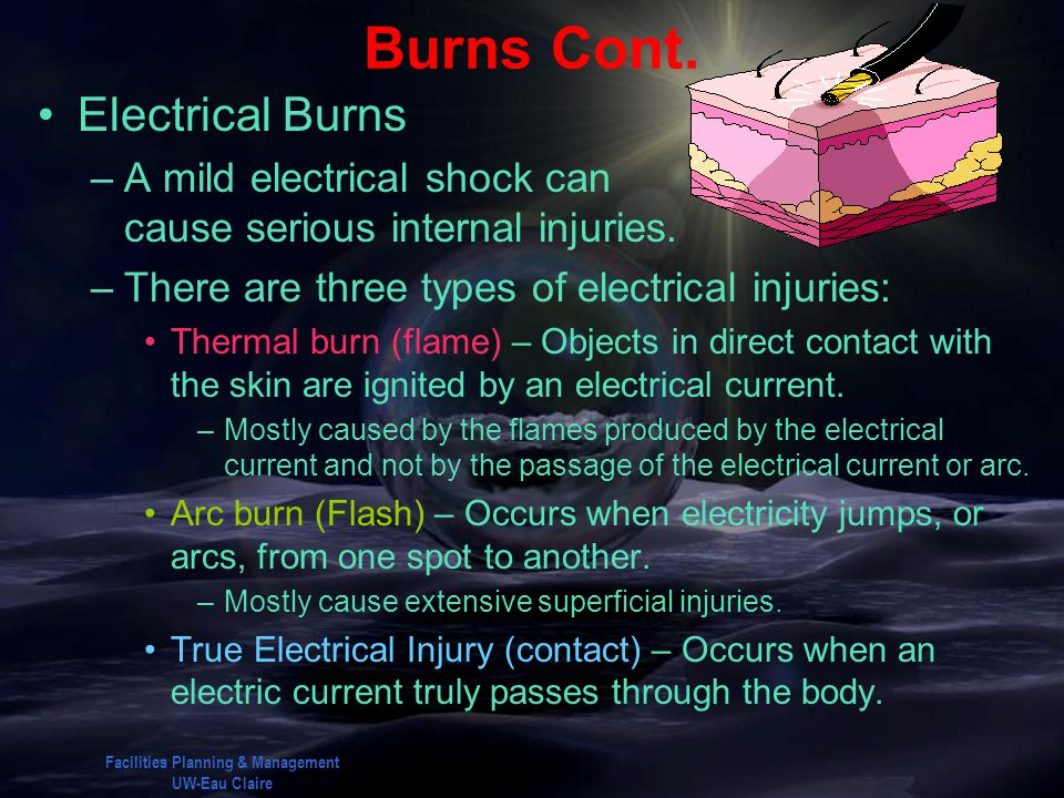 Facilities Planning & Management UW-Eau Claire Burns Cont. Electrical Burns –A mild electrical shock can cause serious internal injuries. –There are t