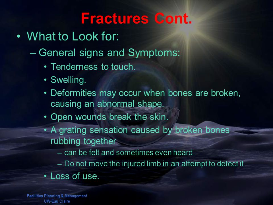 Facilities Planning & Management UW-Eau Claire Fractures Cont. What to Look for: –General signs and Symptoms: Tenderness to touch. Swelling. Deformiti