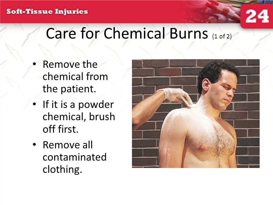 Care for Chemical Burns (1 of 2) Remove the chemical from the patient. If it is a powder chemical, brush off first. Remove all contaminated clothing.