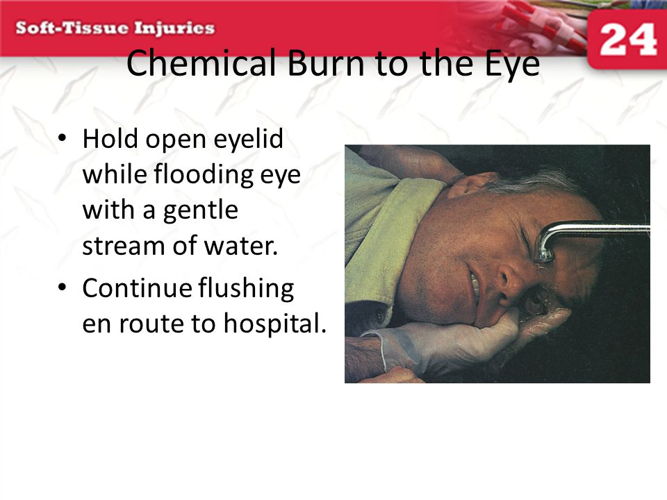 Chemical Burn to the Eye Hold open eyelid while flooding eye with a gentle stream of water. Continue flushing en route to hospital.