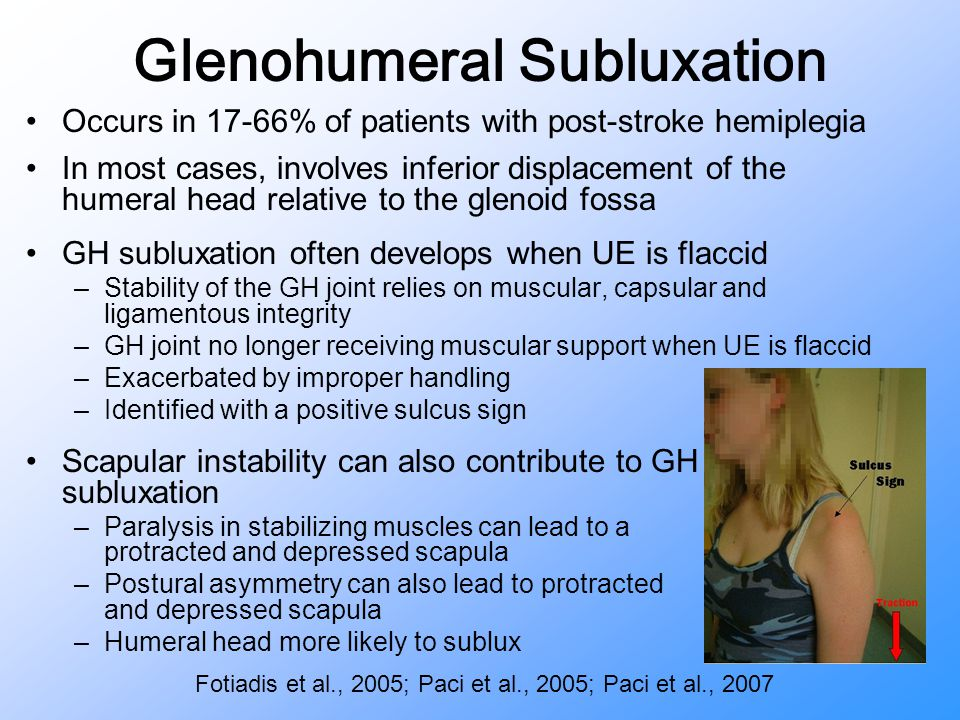Glenohumeral Subluxation Occurs in 17-66% of patients with post-stroke hemiplegia In most cases, involves inferior displacement of the humeral head re